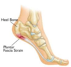 The Scoop on Plantar Fasciitis.